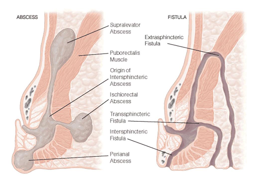 Ayurvedic Management of Fistula-in-ano